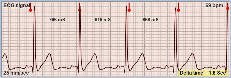 Theremino ECG with classic ECG signal