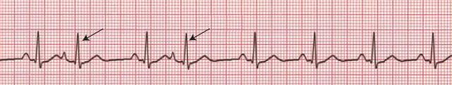 Premature Atrial Contraction (ECG)