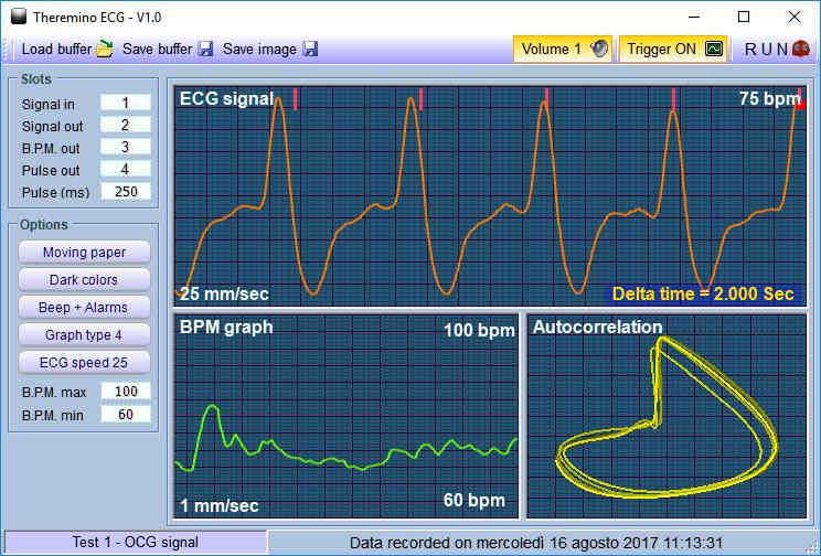 Theremino ECG