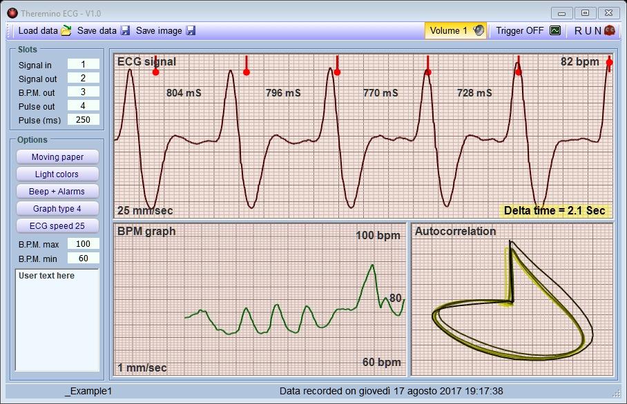 Theremino ECG V1.0