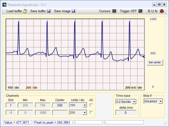 ECG with Theremino SignalScope