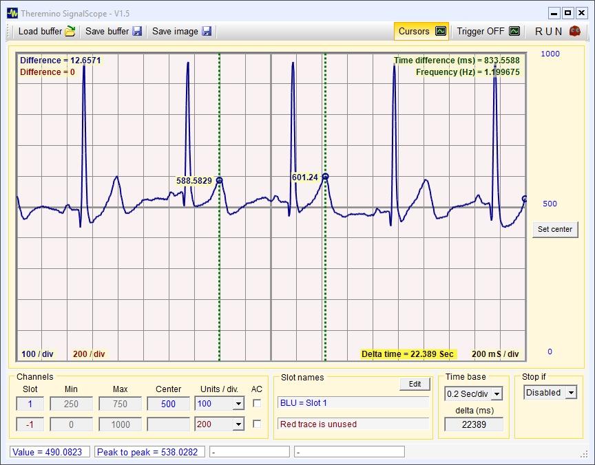 ECG mesuring cursors